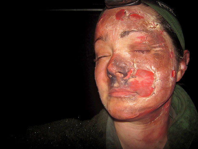 Sex facial burn pictures Gay Stockings